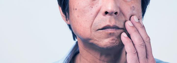 頬の肝斑を気にする中年男性